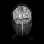 Real Anatomy  Brain